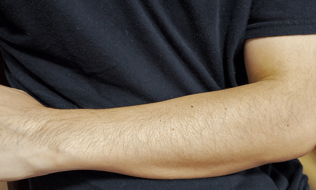 毛の生えた腕の写真