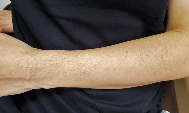 一部を除毛した腕の写真